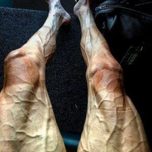 Đôi chân gân guốc không ai muốn nhìn của Pawel Poljanski sau khi đạp xe 3000km dưới trời nắng
