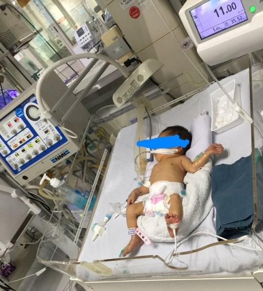 bé 32 tuần bị mẹ phá bỏ được cứu sống