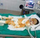 bé gái 4 tuổi nguy kịch khi nhà bống nhiên bốc cháy trong đêm