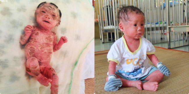 Xót xa bé gái 14 tháng tuổi bị bố mẹ bỏ rơi vì sinh ra hình hài khác lạ