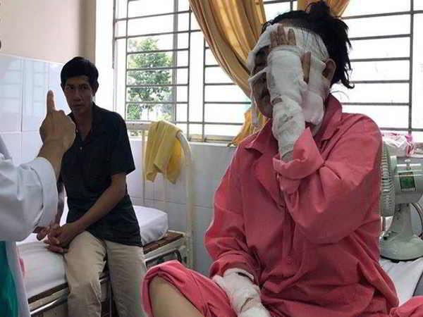 Cô gái sắp kết hôn bị tạt axit đến hỏng hai mắt