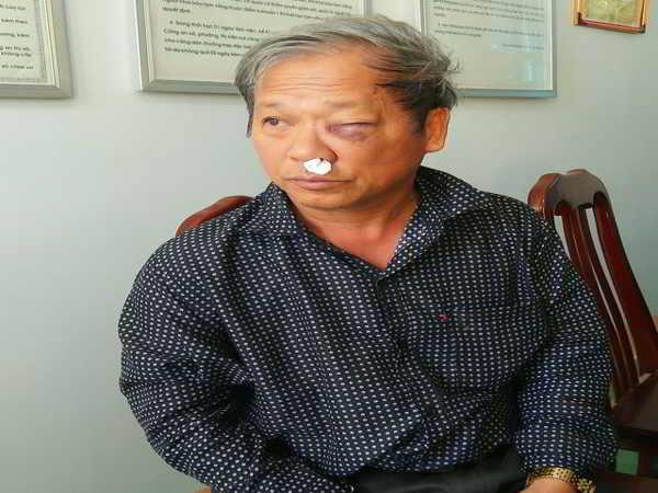 Phóng viên VTV bị hành hung sau khi báo tin cho công an