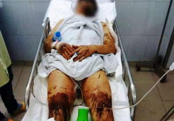 Đôi nam nữ Việt Kiều bị tạt axit, cắt gân chân trong đêm